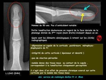 LM CC ostéo-artic tumeur glomique des doigts - RADIOLOGIE ...