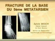 Fractures de la base du 5ème métatarsien