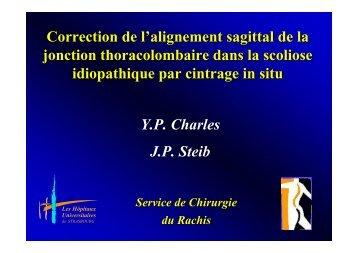 Correction de l'alignement sagittal de la jonction thoraco-lombaire ...