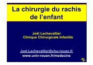 La chirurgie du rachis de l'enfant - CHU de Rouen