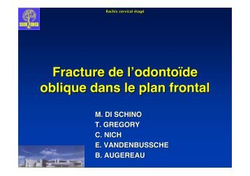 Fracture de l'odontoïde oblique dans le plan frontal. - ClubOrtho.fr