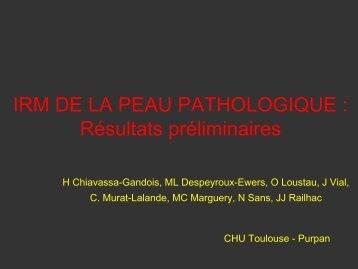 IRM DE LA PEAU PATHOLOGIQUE : Résultats préliminaires