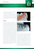 Comparaison des taux de survie des implants en oxyde ... - Dentalbio - Page 5