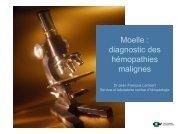Moelle : diagnostic des hémopathies malignes