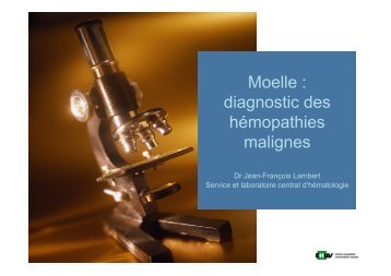Moelle : diagnostic des hémopathies malignes