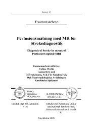 Perfusionsmätningar med MR för stroke diagnostik