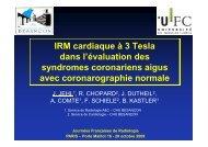 IRM cardiaque à 3T dans l'évaluation des syndromes coronariens ...