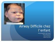 Airway Difficile chez l'enfant