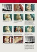 Biodentine™ - septodont - Page 3