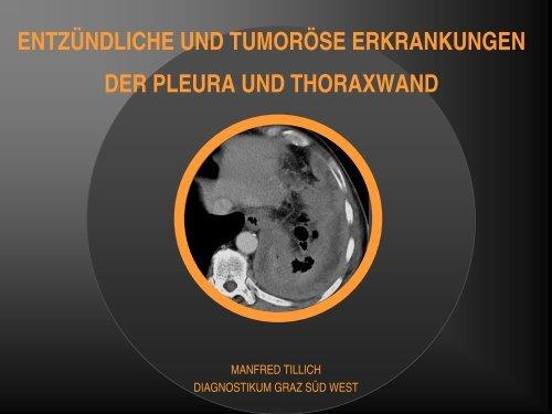 entzündliche und tumoröse erkrankungen der pleura und thoraxwand