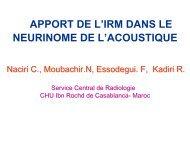 APPORT DE L'IRM DANS LE NEURINOME DE L'ACOUSTIQUE