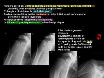 D C lésions focales de l'os généralités o1 - RADIOLOGIE BRABOIS