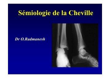 Entorses cheville - Cardiologie.info