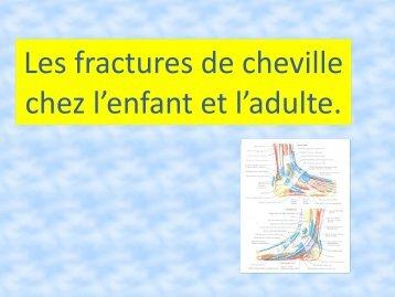 Les fractures de cheville chez l'enfant et l'adulte.