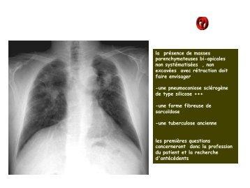 LM CC thorax silicose pseudo masses fibreuses - RADIOLOGIE ...
