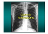 Cavernes Tuberculeuses - Soutien Pneumologique International