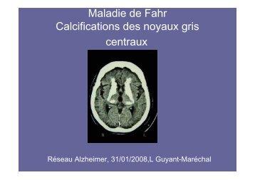 Maladie de Fahr Calcifications des noyaux gris ... - CHU de Rouen
