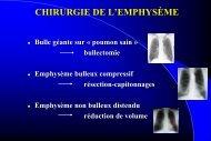 CHIRURGIE DE L'EMPHYSÈME