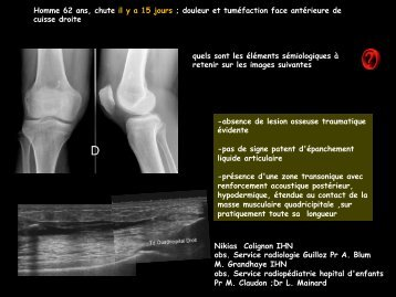 LM CC ostéo-artic syndrome de Morel-Lavallée - RADIOLOGIE ...