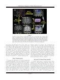 Probabilistic topography of human corpus callosum using ... - DCA - Page 4
