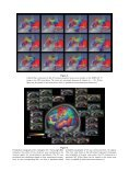 Probabilistic topography of human corpus callosum using ... - DCA - Page 7