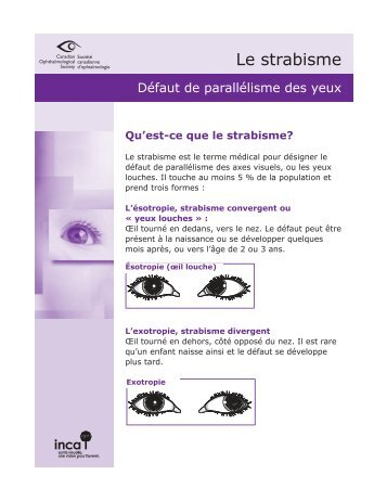 déviation des axes visuels - Canadian Ophthalmological Society