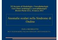 Anomalie oculari nella Sindrome di Ondine - E. Medea
