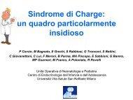 Sindrome di Charge: un quadro particolarmente insidioso - Sipps
