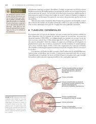 Tumeurs cerebrales - Campus de Neurochirurgie