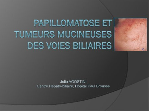 Papillomatose et tumeurs mucineuses des voies biliaires