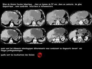 LM CC dig échinococcose alvéolaire - RADIOLOGIE BRABOIS