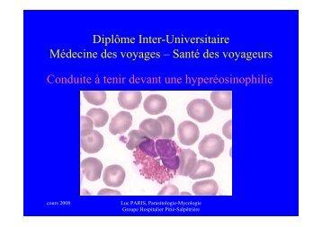 Conduite à tenir devant une hyperéosinophilie