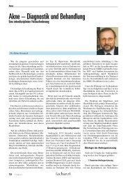 Akne – Diagnostik und Behandlung