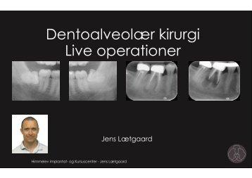Ribe Juni 2012 - Mobilkir.dk, Implantater - kirurgi