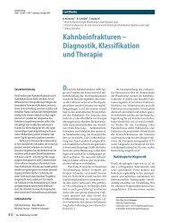 Kahnbeinfrakturen – Diagnostik,Klassifikation und Therapie