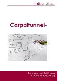 Pjece carpaltunnelsyndrom.pdf - e-Dok