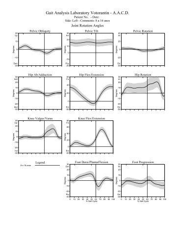 Gait Analysis Laboratory Votorantin - A.A.C.D. - Análise de Marcha