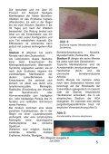 Borreliose - ZAL-Magazin - Page 5