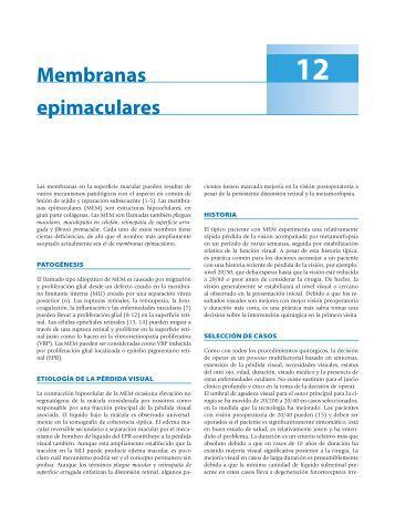 Membranas epimaculares - Axon