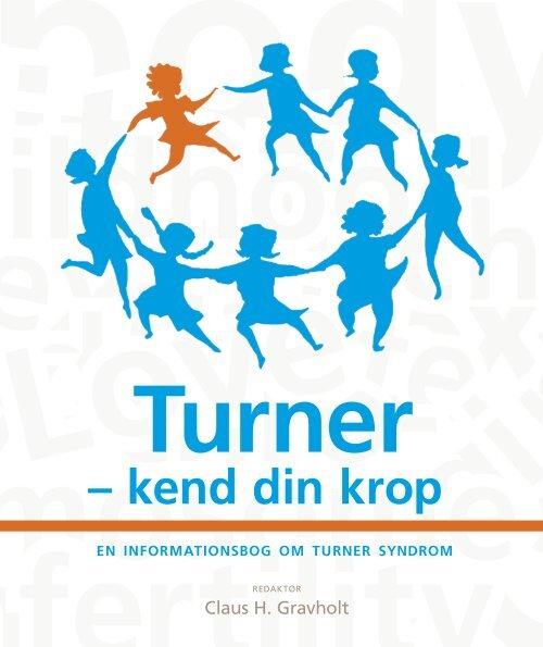 0d3d44a4 Turner kend din krop - en informationsbog - Turners syndrom