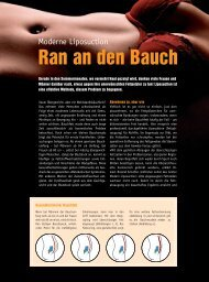 Ran an den Bauch - Center Modern Liposuction