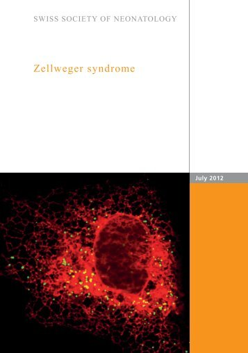 Zellweger syndrome - Swiss Society of Neonatology