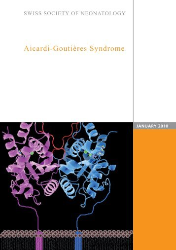 Aicardi-Goutières Syndrome - Swiss Society of Neonatology