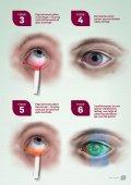 Irriterede øjne - Page 4