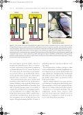 Sygdomme i basalganglierne og andre bevægeforstyrrelser - Page 4