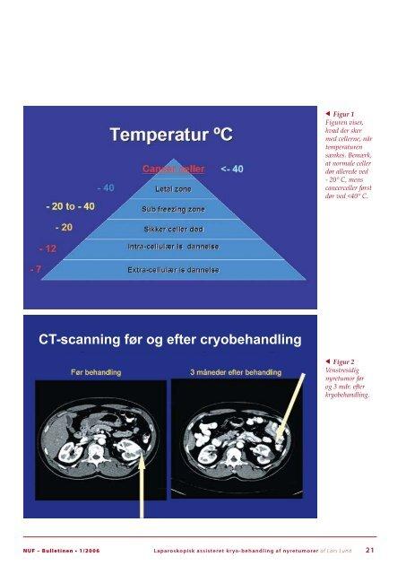 Urologisk Forening - Scandinavian Association of Urology
