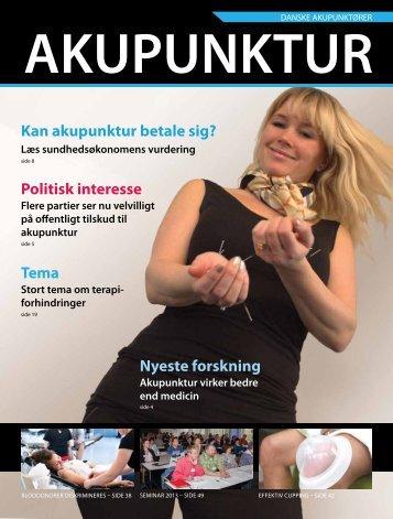 Politisk interesse Kan akupunktur betale sig? - Danske Akupunktører