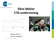 Sikre fødsler CTG-undervisning