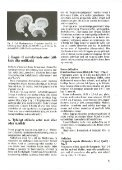 Svampe på Brændenælder - Page 7
