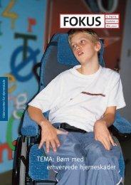 TEMA: Børn med erhvervede hjerneskader - Servicestyrelsen